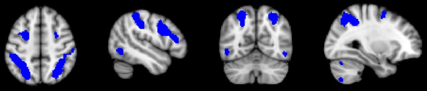Neuro 2 visuospatial