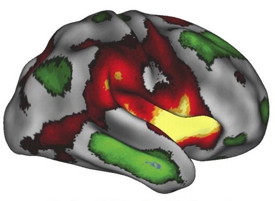 Neuro 4