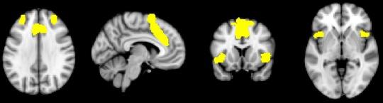 Neuro 5 Salience