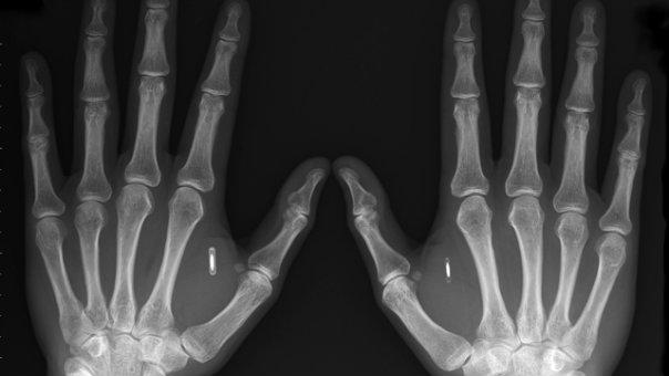 RFID_Implants